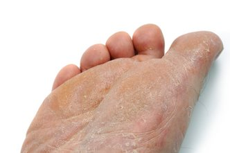 Mount Dora Podiatrist | Mount Dora Athlete's Foot | FL | Mount Dora Podiatry |